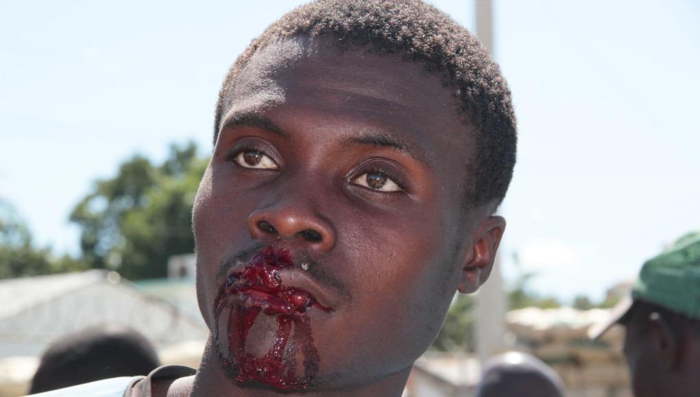 Decenas de Dominicanos Golpean Haitianos en mercado fronterizo de dajabón
